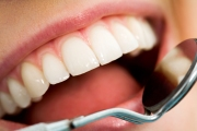 Dental Effects During Pregnancy