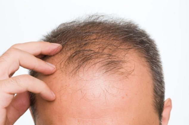 hair-loss - vivandi hairspa