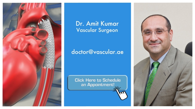 the good doctor - dr amit kumar aneurysm