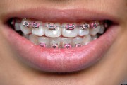 dr firas dental braces