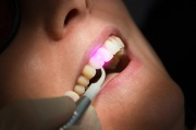 Dental Laser Zahnbehandlung Zahnfleisch